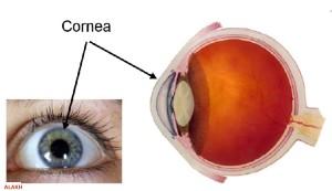 corneal transplant in india
